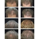 Labby Before and After Hair Loss Treatments Digital Images