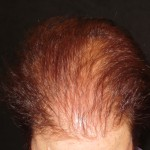 Hair Loss Treatments By Trichologist Carolyn Evans-Frost I.A.T.