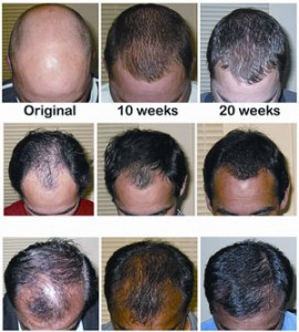 Can Laser Hair Therapy Really Help My Thinning Hair? By Hair Loss Treatments - Call Us On 07 3229 3242