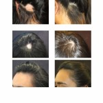 Dee's Alopecia Areata Hair Loss Treatments Before and After Images Digital