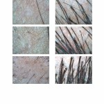 Dee's Alopecia Areata Hair Loss Treatments Before and After Images Microscopic