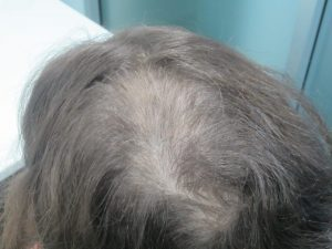 Alopecia Hair Loss Treatment Results