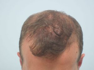 Results from Mens Hair Loss Treatments