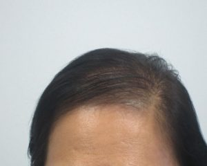 Hair Loss Treatment for Women Results