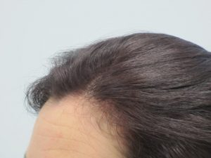 Preventing Post Partum Alopecia with Hair Loss Treatment For Women