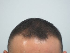Results, Hair Loss Treatment for Men