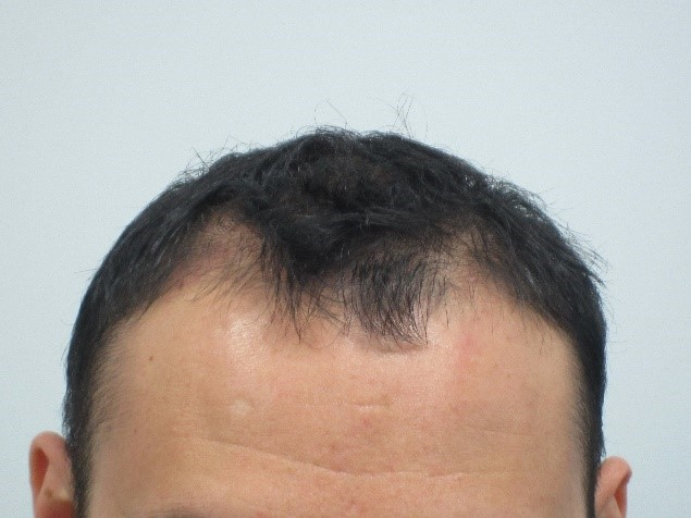 Mens-Hair-Loss-Before