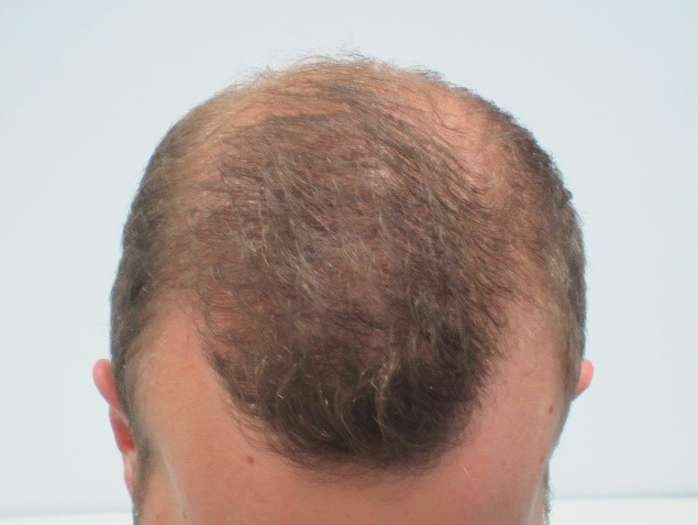 Before: Male Pattern Thinning