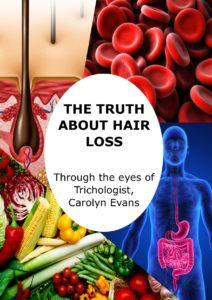Carolyn Evans the Truth About Hair Loss eBook
