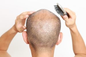 Hair Loss Treatment for Men, Early Onset Pattern Thinning