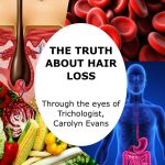 The Truth About Hair Loss Facebook LIVE Series