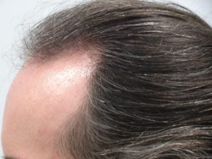 Men's Hair Loss Treatment Story with Laser Therapy after
