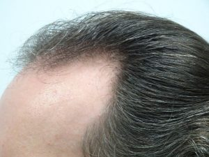 Men's Hair Loss Treatment Story with Laser Therapy before