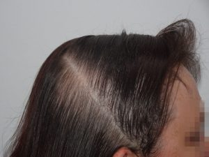 Female Hair Thinning Success Story After