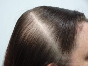 Female Hair Thinning Success Story Before